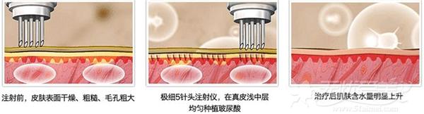 水关针皮肤注射原理