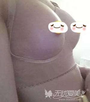 在郑州欧兰做假体隆胸术后4天