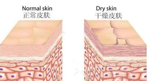 正常的皮肤和干燥的皮肤对比
