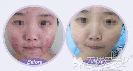 果酸换肤前后对比案例