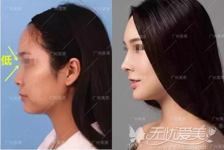 隆鼻+自体脂肪填充全脸前后对比