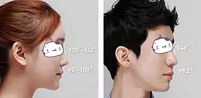 韩国隆鼻手术分男女
