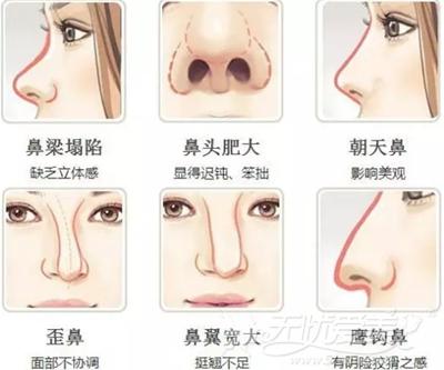 适合进行韩式隆鼻手术的鼻型