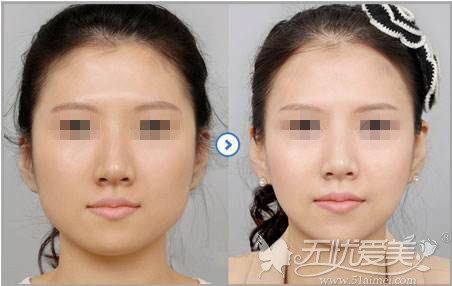 注射瘦脸针前后对比案例