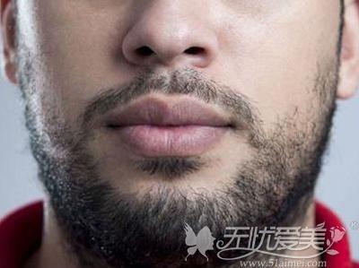 每天刮胡须对男士来说很麻烦