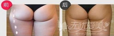 激光溶脂塑臀型案例