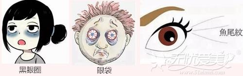 眼部皮肤娇嫩经常哭会造成黑眼圈