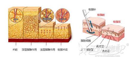 吸脂手术原理