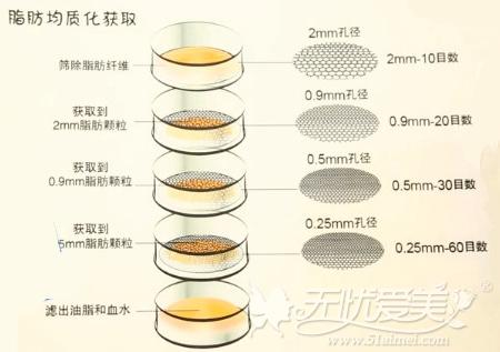 通过脂肪筛网过滤脂肪可避免填充后凹凸不平