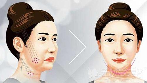 面部线雕提升可以去除皱纹。紧致面部