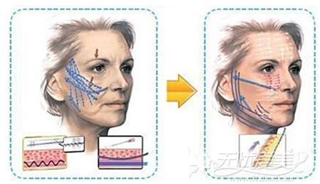 面部线雕提升手术原理