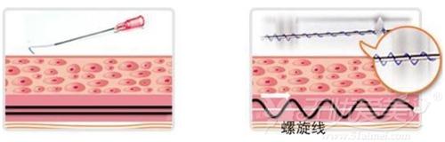 面部线雕提升手术使用的PPDO线