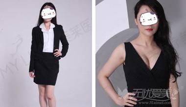 在深圳美莱做假体隆胸术前术后对比