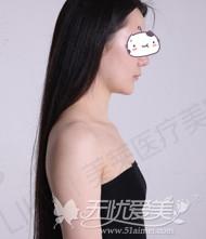 去深圳美莱隆胸术前拍照