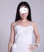去深圳美莱隆胸手术经历
