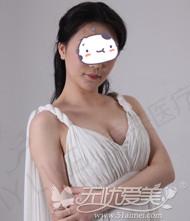 去深圳美莱隆胸手术后1个月恢复