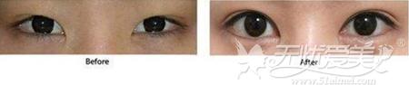 韩式双眼皮手术案例