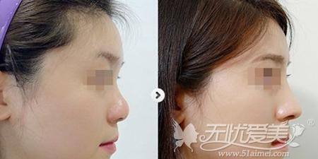 玻尿酸隆鼻案例
