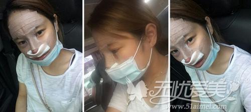 敏珠在韩国ID整形医院做完面部脂肪移植+鼻整形手术当天