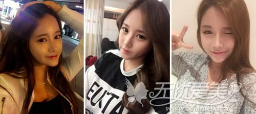 敏珠在韩国ID整形医院做完面部脂肪移植+鼻整形术后二个月