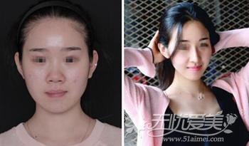 北京沃尔整形美容医院刘彦军专家隆鼻案例