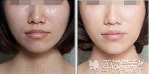 光子嫩肤前后对比案例