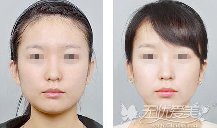 瘦脸针前后对比案例
