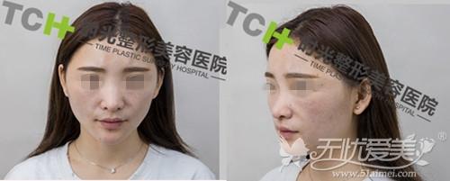 夏天在重庆时光整形美容医院面诊结果