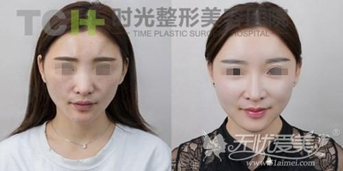 重庆时光面部脂肪填充+线雕隆鼻案例