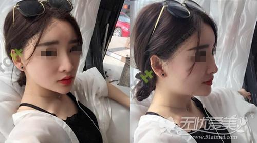 夏天在重庆时光做面部脂肪填充+线雕隆鼻术后半个月