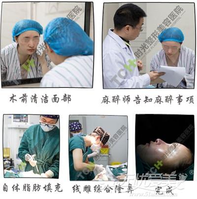 夏天在重庆时光做面部脂肪填充+线雕隆鼻当天