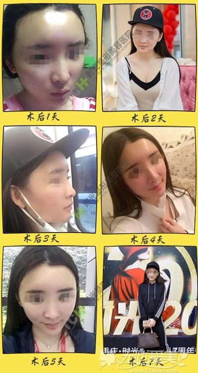 夏天在重庆时光做面部脂肪填充+线雕隆鼻恢复一周