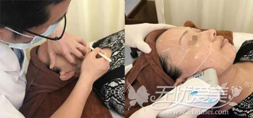 丹璞在长沙雅美做超声刀除皱手术过程