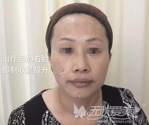 丹璞在长沙雅美做超声刀除皱左右脸对比
