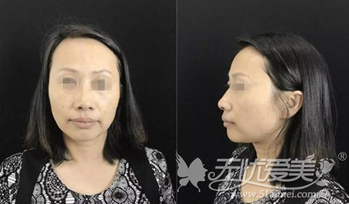 丹璞在长沙雅美做超声刀除皱术前照片