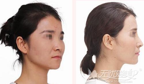 上海伊莱美整形医院邱文苑专家隆鼻案例