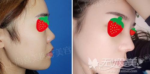 上海喜美整形医院王会勇专家鼻综合案例