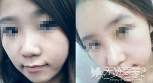 上海第九人民医院整形外科李青峰专家隆鼻案例