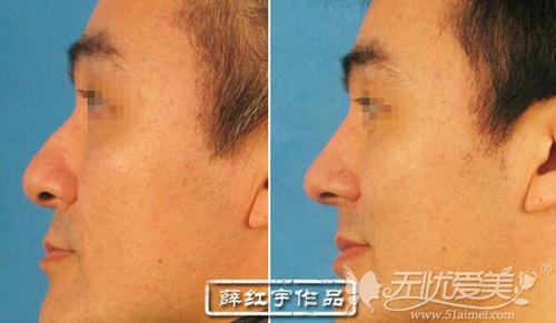 北医三院成形外科整形美容中心薛红宇专家隆鼻案例