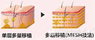 韩国PRP脂肪填充MESH技法