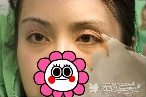 玻尿酸填充眼窝,左边填完后,右边填充中