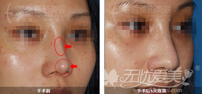 广州粤秀整形外科门诊部徐士亮院长隆鼻术案例