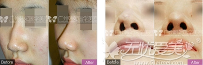 广州韩妃医疗美容医院刘志刚专家鼻整形案例