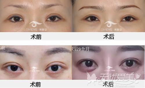 北京来美安整形医院王振军专家眼部修复案例