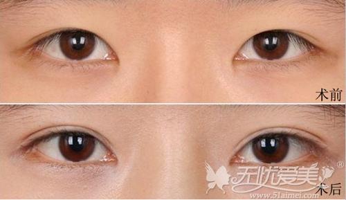 北京炫美整形美容医院徐学东专家双眼皮手术案例