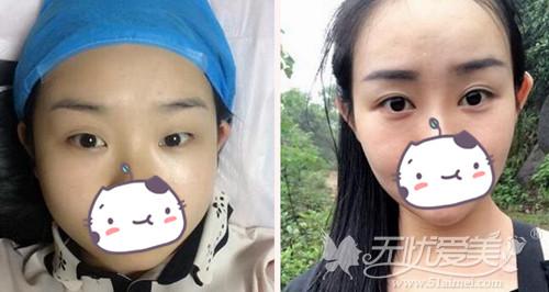北京丽星整形医院魏志香专家双眼皮手术案例