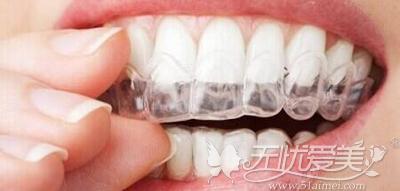 隐形牙套成为更多人的选择