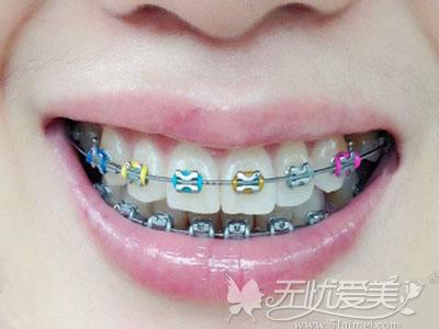 钢丝牙套外观不好看
