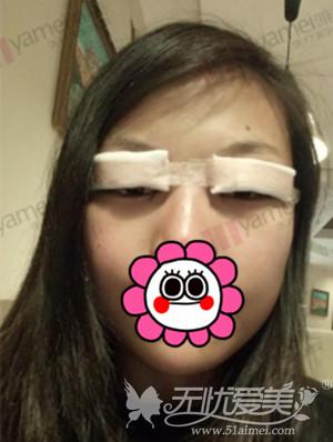 在长沙雅美做双眼皮手术当天