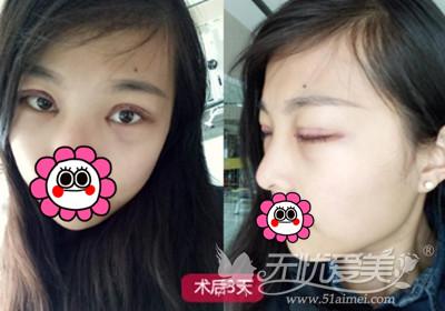 在长沙雅美做双眼皮术后3天恢复